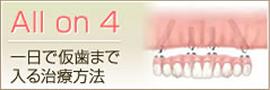 一日で仮歯まで入る治療方法